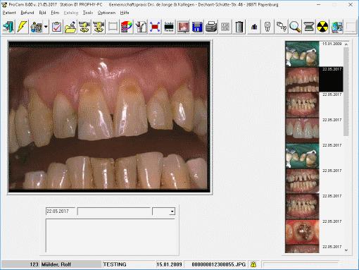 ProCam Bildbearbeitung